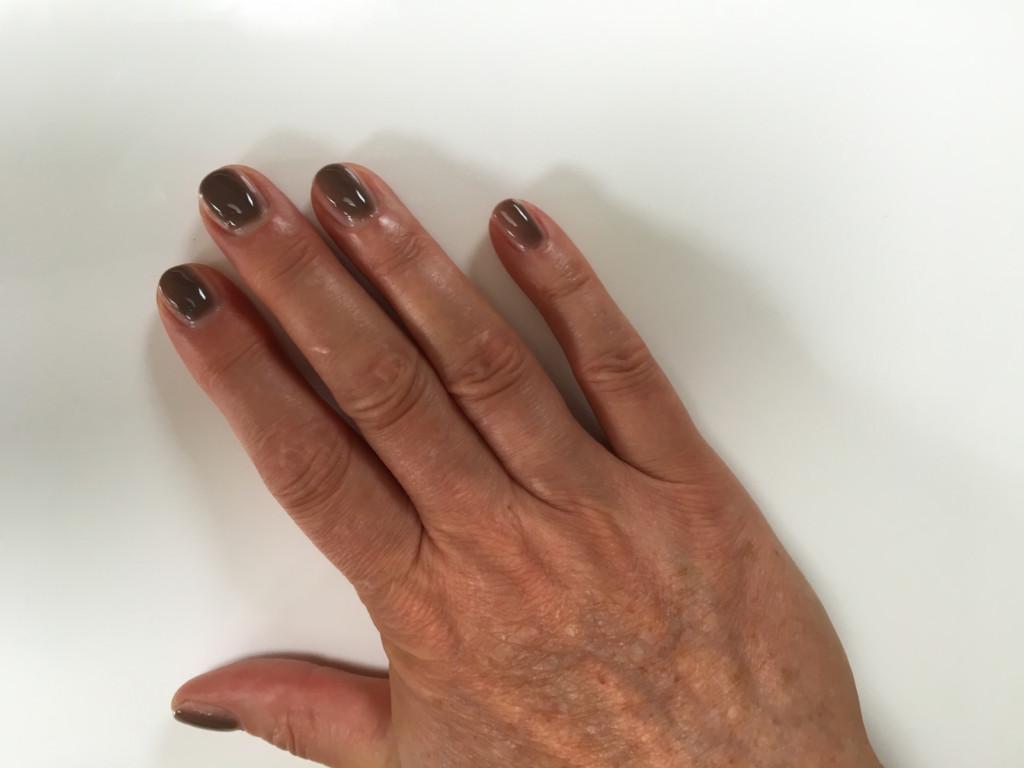 nachts geschwollene finger