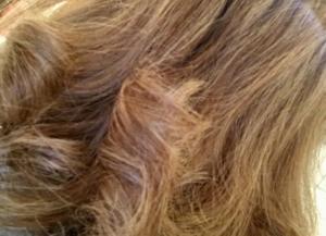 Was hilft gegen Haarausfall