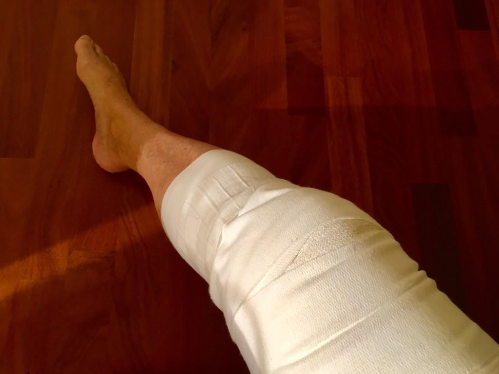 knie gymnastik arthrose